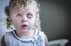 Spór o klapsy. Co ryzykujemy bijąc dzieci?