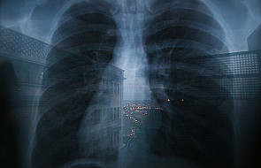 Witamina B6 obniża ryzyko raka płuca