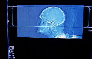 Witamina B może zapobiegać zanikowi mózgu