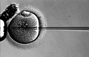 Ekspert KEP: to otwieranie drzwi dla eugeniki