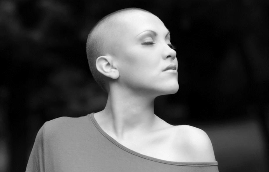 Powalający gest przyjaciół wobec chorej na raka