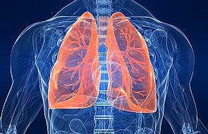 Nadciśnienie płucne coraz lepiej leczone w Polsce
