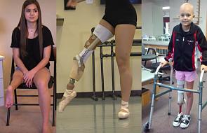 Miała raka kości. Straciła nogę. Teraz zachwyca swoim tańcem