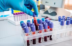 Hematolog o kluczowym znaczeniu badań krwi