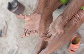Rzym: sympozjum o godności chorych na trąd