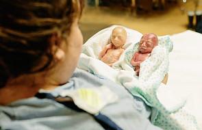 Te 22-tygodniowe bliźniaki mówią nam o aborcji coś bardzo ważnego