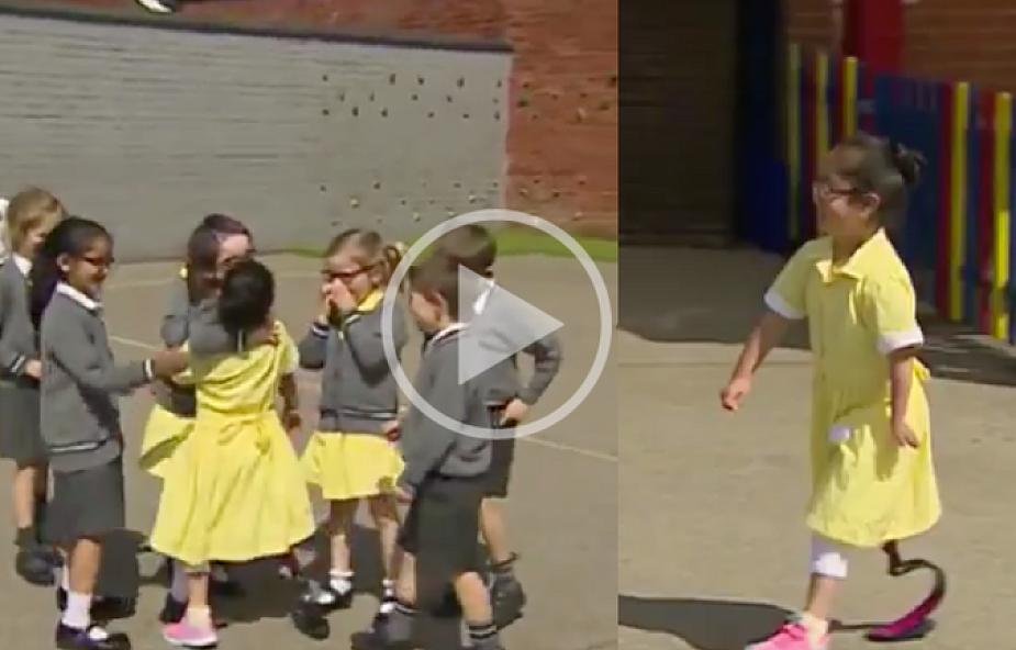 Wspaniała reakcja dzieci na nową protezę koleżanki [WIDEO]