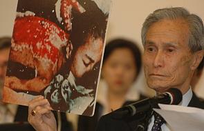 Zdjęcie jego poparzonych pleców obiegło cały świat