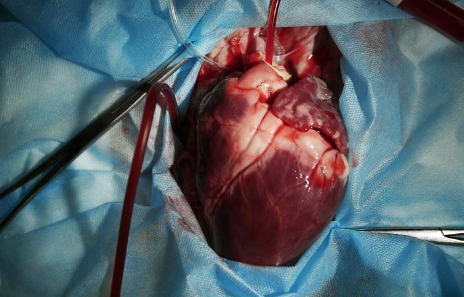 Kościół pozwala ci oddać organy pod tym jednym warunkiem