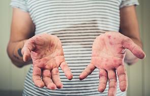 Rumunia: Już 46 ofiar śmiertelnych epidemii odry