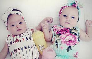 """Wśród bliźniaków to zdarza się raz na milion: """"oboje byli tacy piękni"""""""