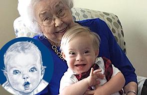 Dawna twarz Gerbera spotkała się z nową. Zdjęcie 93-latki i chłopca z Zespołem Downa bije rekordy popularności