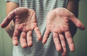 Ukraina: osiem ofiar śmiertelnych odry od początku roku