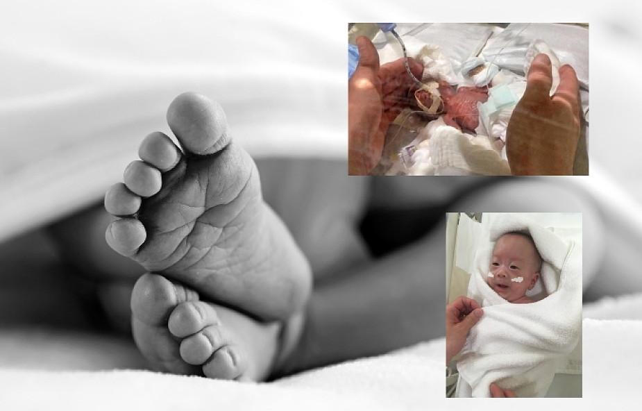 Zaraz po narodzinach mieścił się w dłoni. To najmniejsze dziecko na świecie