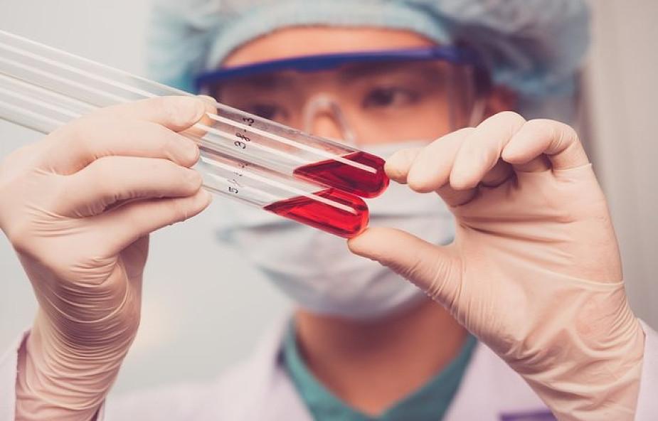 Uganda: zmarła druga osoba zakażona wirusem ebola
