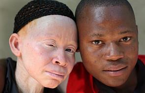 Afryka: trzeba skończyć z przemocą wobec albinosów