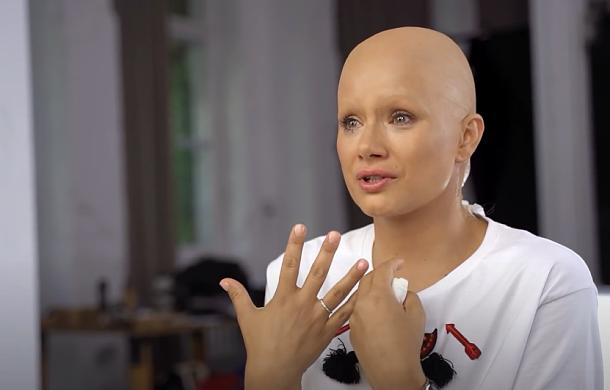 Znane aktorki poczuły, jak to jest utracić włosy po chemioterapii - rozpoznasz je? Poruszająca akcja Fundacji Rak'n'Roll