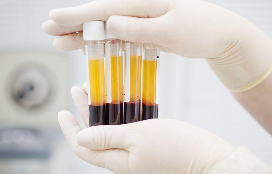 Badania: osocze ozdrowieńców daje chorym z ciężkim przebiegiem COVID-19 niewielką korzyść