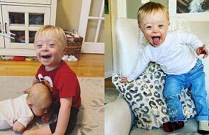 Niesamowita reakcja chłopca z zespołem Downa na nowonarodzonego brata