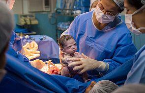 Zdjęcie tego noworodka podbija Internet. Musicie to zobaczyć!