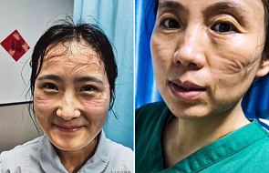Chińskie pielęgniarki pokazały jak wyglądają po godzinach walki z koronawirusem