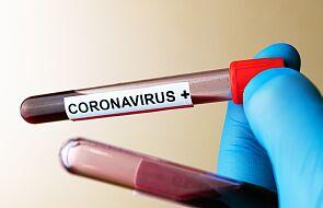Ministerstwo Zdrowia: 305 nowych zakażeń koronawirusem, zmarło 6 kolejnych osób