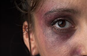"""""""Pewnie zasłużyła"""" i inne mity o przemocy domowej"""
