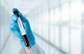 Francja: Resort zdrowia wprowadza lokalnie dodatkowe restrykcje w związku z pandemią