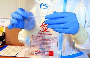 Ministerstwo Zdrowia: 7 795 nowych zakażeń koronawirusem, zmarło 386 osób