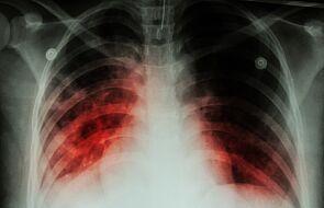 WHO: po raz pierwszy od 10 lat roczny wzrost liczby zgonów na gruźlicę