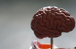 """Każdy ludzki mózg ma swój """"odcisk palca"""""""
