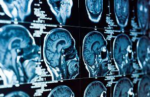 Powikłania COVID-19. Wiadomo, jak wirus uszkadza mózg
