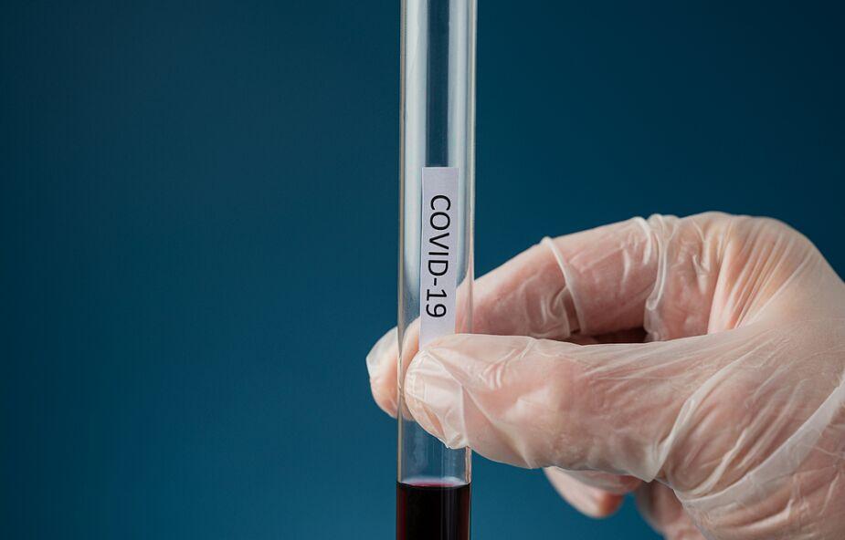 Odkryto nowy, niepokojący wariant koronawirusa