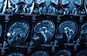 Naukowcy chcą wiedzieć, jak Covid-19 wpływa na mózg