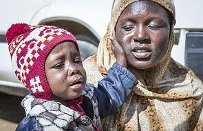 Sudan Południowy. Ludzie ginęli nawet w święto niepodległości
