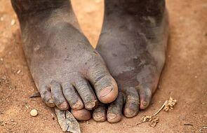 """""""Ludzie jedzą owady i nasiona zmieszane z błotem"""". Bardzo trudna sytuacja na Madagaskarze"""